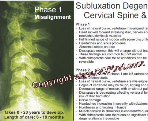 Spinal Decay Poster