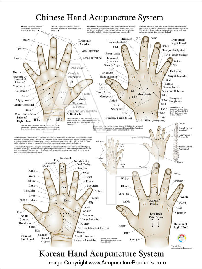 Chinese Hand Acupuncture Poster