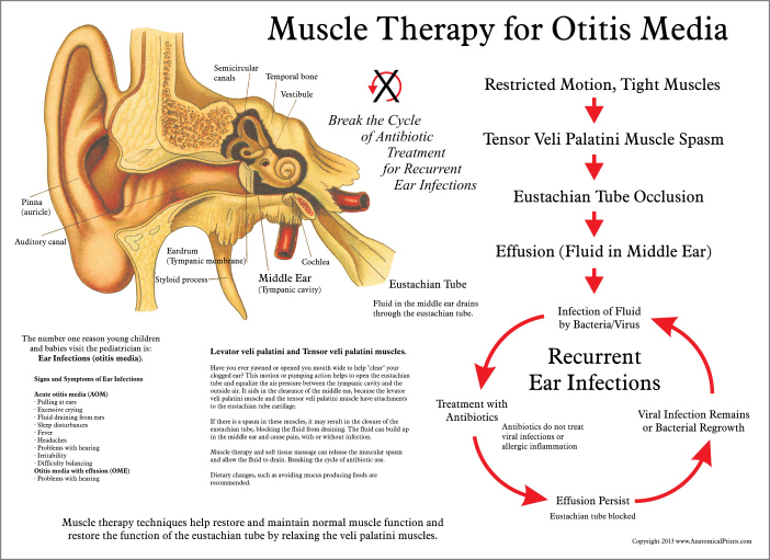 Muscle Therapy for Otitis Media Poster